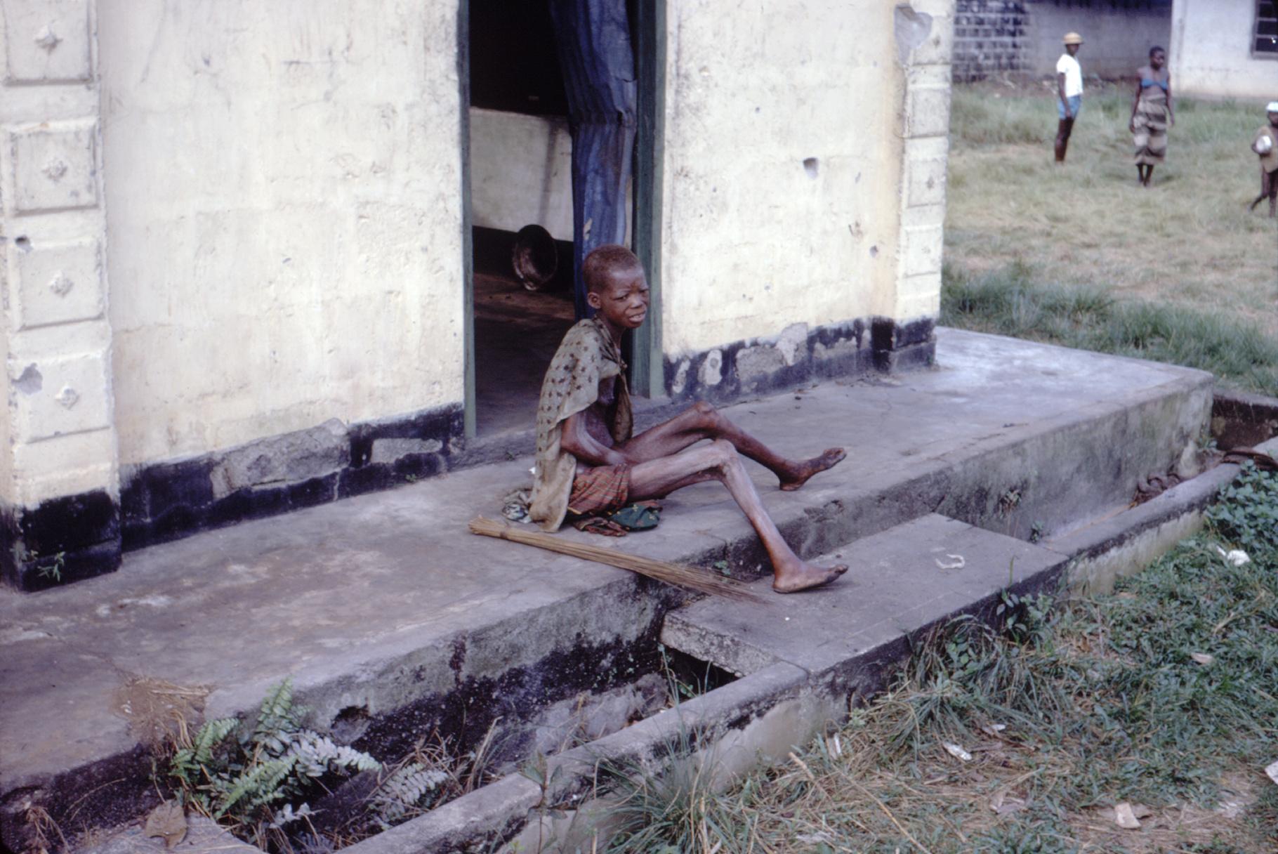 Unterernährte Frau