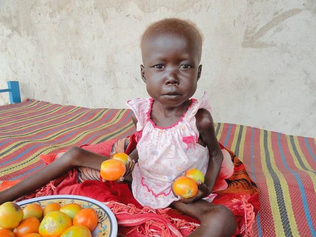 Vielen Kindern im Südsudan kann leider nicht geholfen werden |  Bild: © Amy the nurse [CC BY-NC-ND 2.0]  - flickr